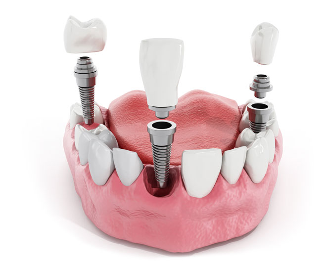 dental-implant-model-1